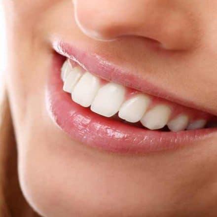 Blanchiment dentaire par un pro, c'est quoi ?